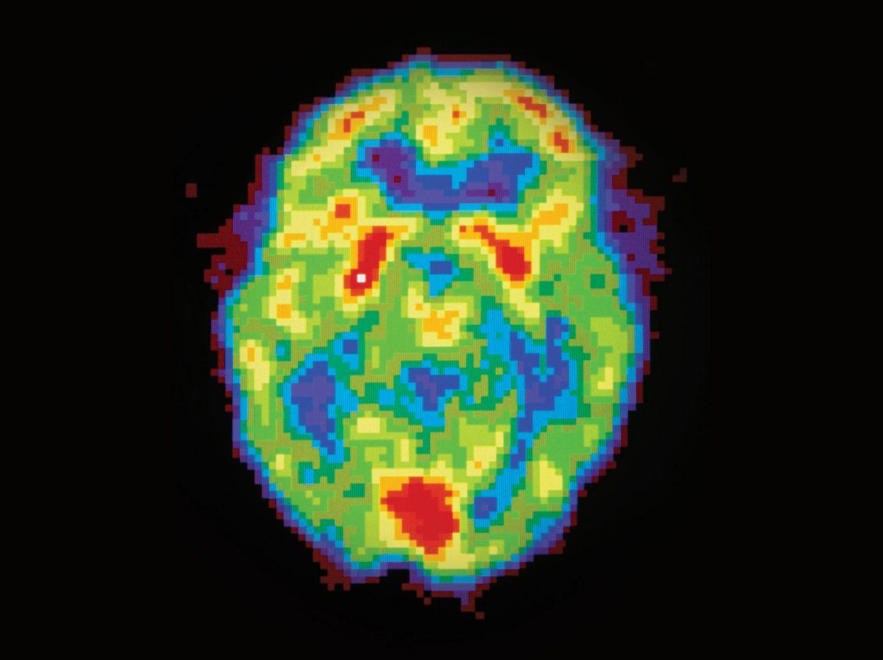 EEG aktivitet av hjernen